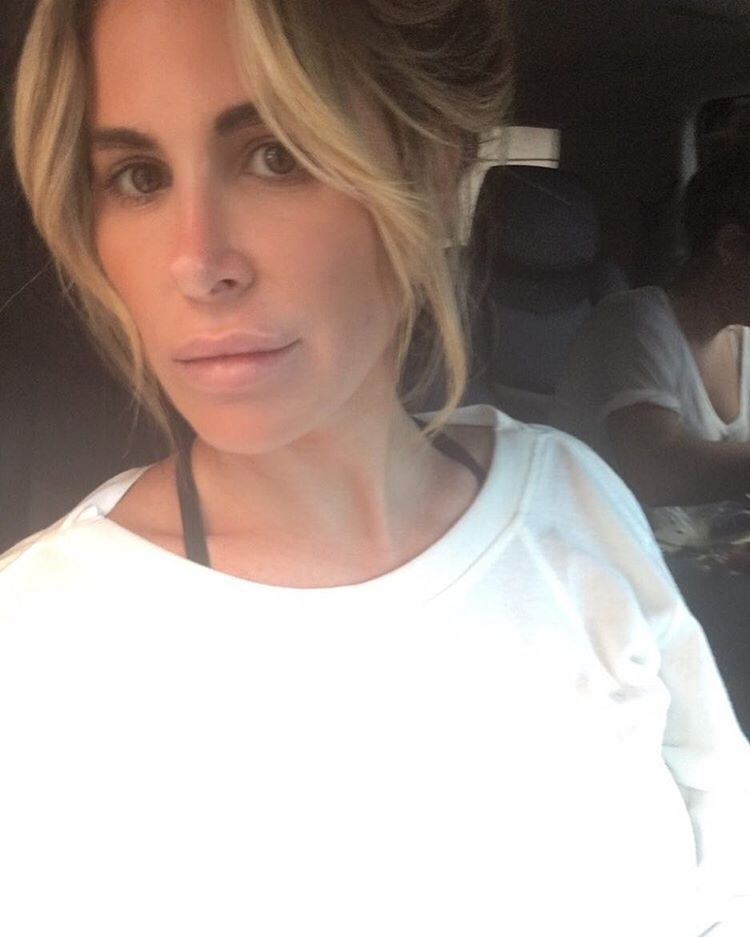 kim zolciak lip injections