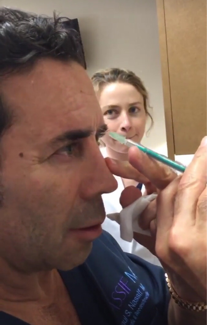 paul nassif botox injections